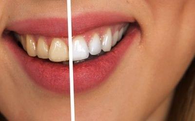 Zdravi zobje in usta